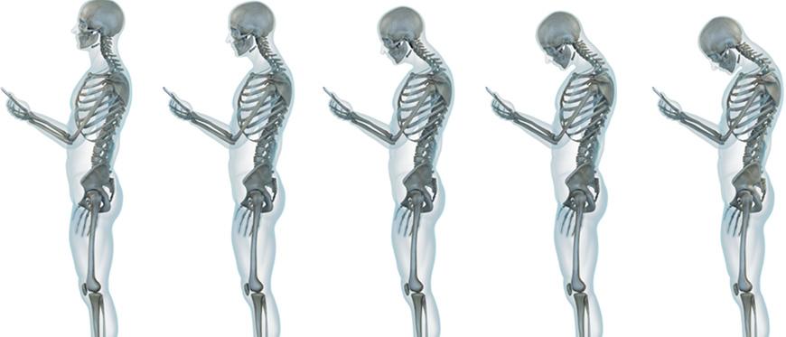Skeletal views of good to poor neck posture while looking at phone