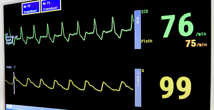 Heart monitor output